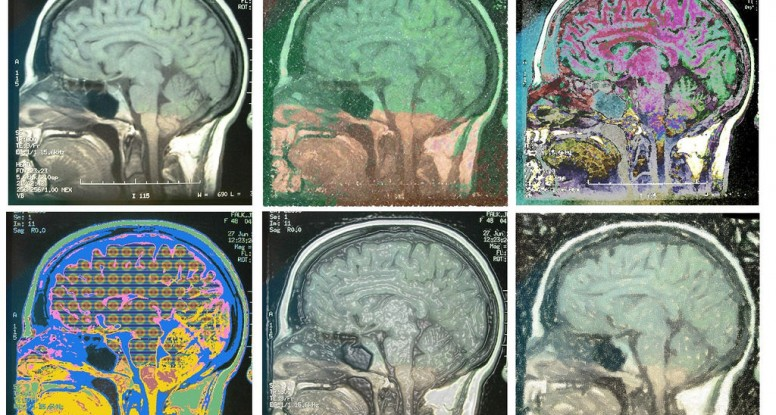 brain conspires